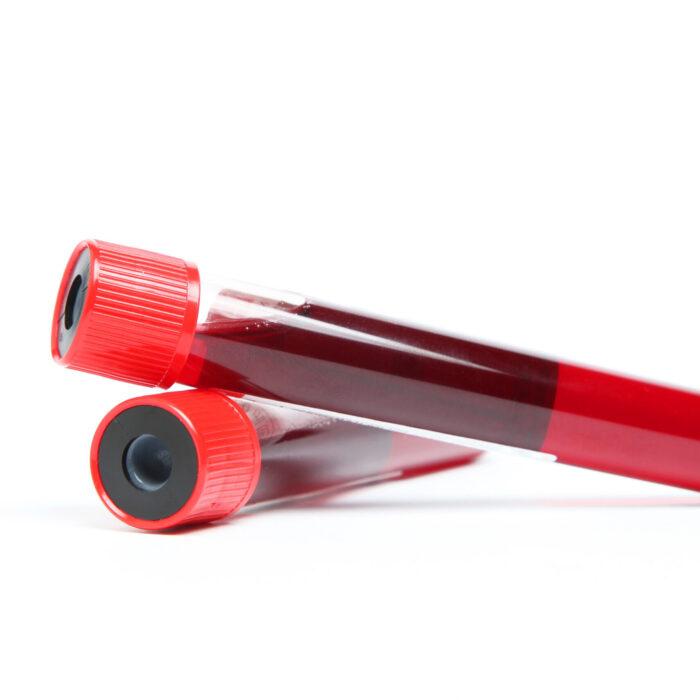 Bloedonderzoek voeding